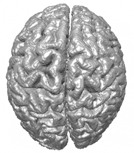 Segmented brain from synthetic MR images using the level set method