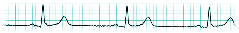 ECG Dicom Convert