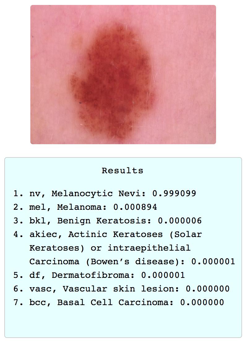 GitHub - vbookshelf/Skin-Lesion-Analyzer: Ai powered web app that